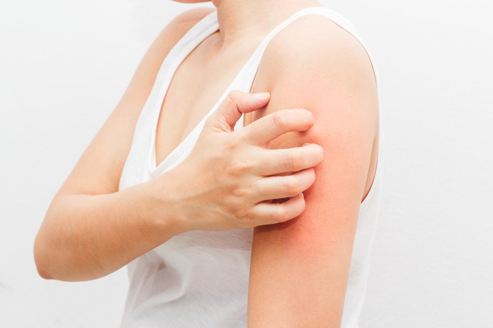 jak rozpoznać atopowe zapalenie skóry