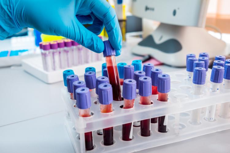 Stosowanie leków przeciwzakrzepowych to wyzwanie zarówno dla pacjenta jak i lekarza (fot. Shutterstock)