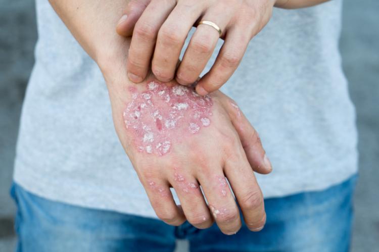 Szacuje się, że na świecie łuszczyca dotyka ok. 2-5 proc. ludzi, tj. ok. 140-210 mln pacjentów (fot. Shutterstock)