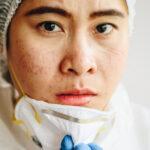 Maskne – czy maseczki ochronne powodują trądzik?